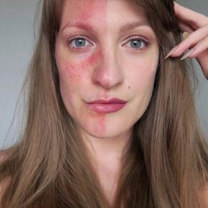 Do you suffer with Rosacea ?