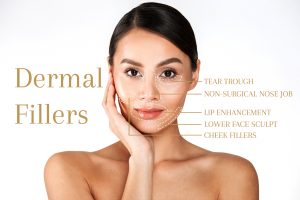 The Longevity of Dermal Fillers