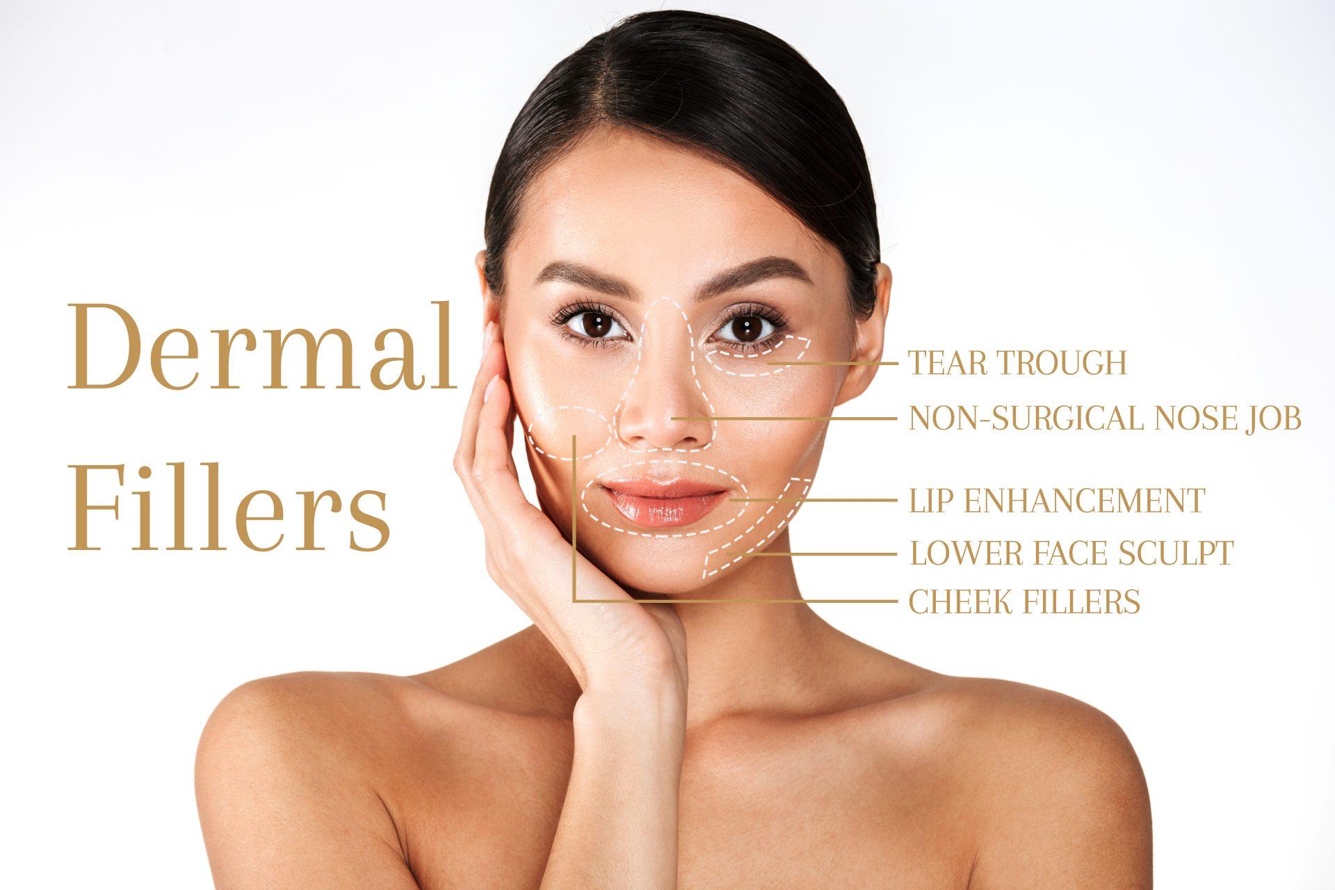 The Longevity of Dermal Fillers
