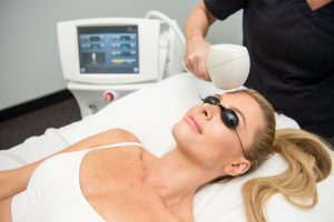 What is an IPL Laser Treatment?