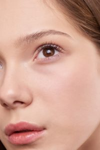 What Are Cheek Fillers?