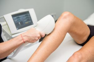 Side Effects of IPL Hair Removal: What You Should Know