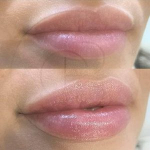 What do lip fillers do to your lips?