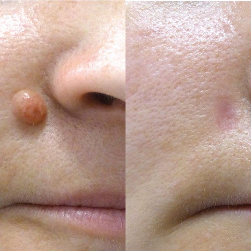 mole-removal-leeds-harrogate-banner-right